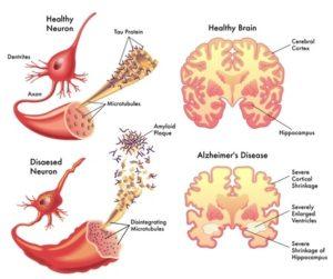 Alzheimer's Disease!