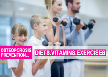Osteoporosis Prevention, Diets, Vitamins & Exercises!