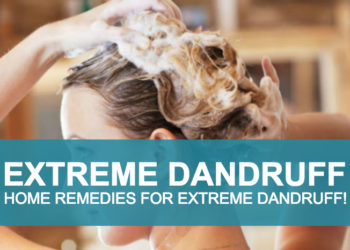 Natural Therapy, Home Remedies For Extreme Dandruff!