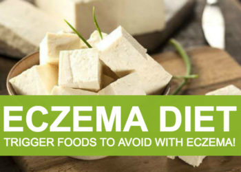 Eczema Diet, and Trigger Foods to Avoid With Eczema!