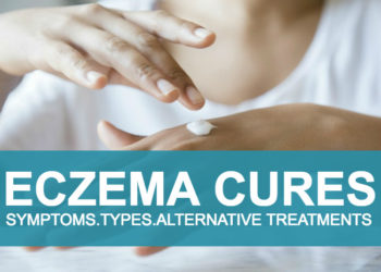 Eczema, Symptoms,Types and Alternative Treatments!