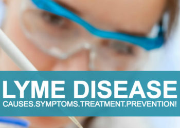 Lyme Disease, Causes, Symptoms and Treatment!