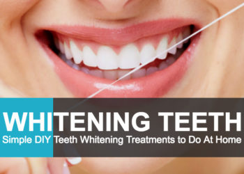 The Different Types of Teeth Whitening Treatments!
